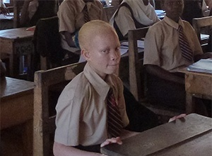 ALBINO'S IN KENIA - INTEGRATIE OF SEGREGATIE
